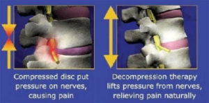 SpineMed Decompression Therapy Plano, TX